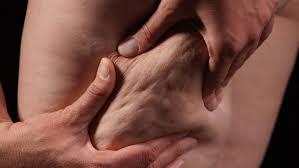 Mann zeigt Cellulite